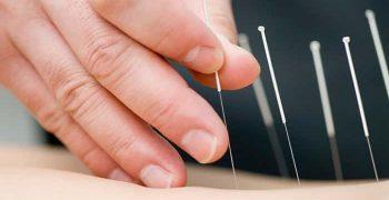 grandes beneficios de la acupuntura
