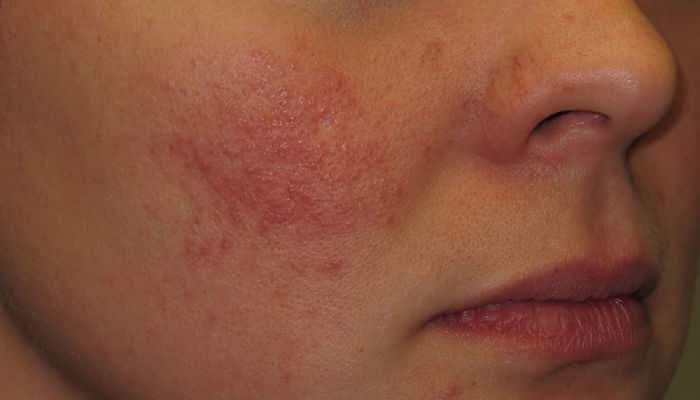 la radiofrecuencia facial