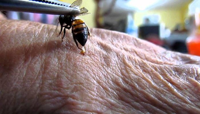 la terapia del veneno de abejas