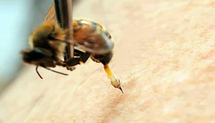 terapia del veneno de abejas